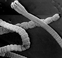 как выходят черви из организма